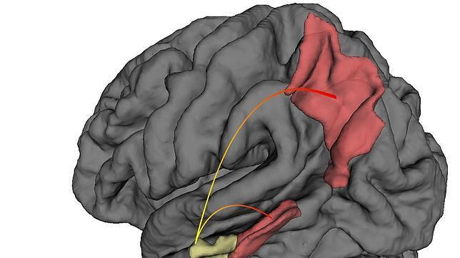 En amarillo, la corteza entorrinal, donde se inicia el alzhéimer, y en rojo, otras áreas del cerebro donde se propaga la enfermedad