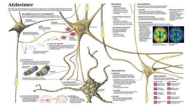 Así se diagnostica el alzheimer