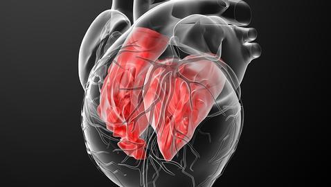 La miocardiopatía dilatada produce un engrosamiento del corazón