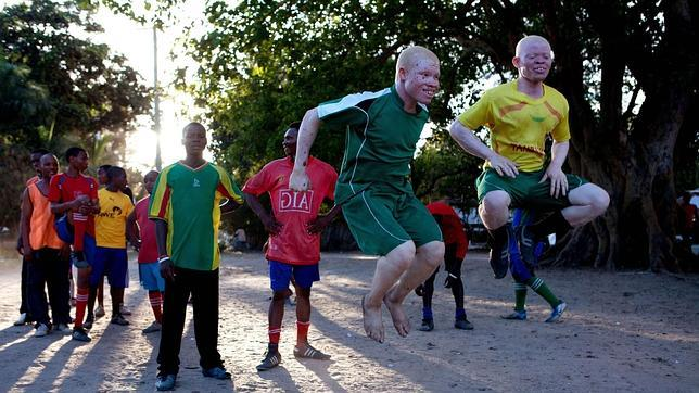 Arrestan a dos médicos por asesinar a una mujer albina en Tanzania