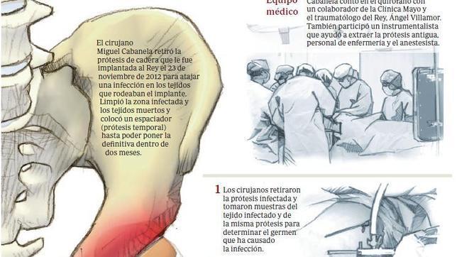 Las trece operaciones de Don Juan Carlos
