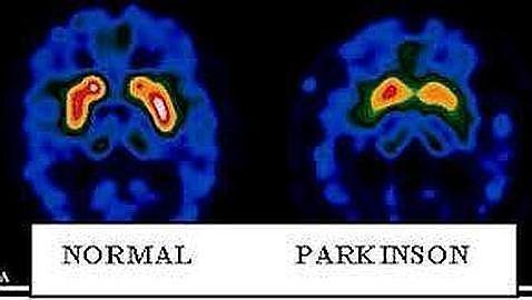 Diferencias entre un cerebro sano y otro con párkinson