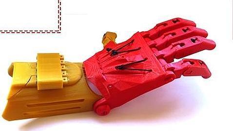 La prótesis hecha con tecnología de impresión 3D en Madrid