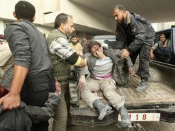 Un mujer herida en el bombardeo es trasladada a un hospital. / REUTERS