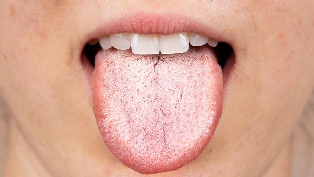 lengua-blanca-causas-k8iD--620x349@abc