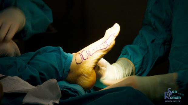 Imagen de una cirugía de pie