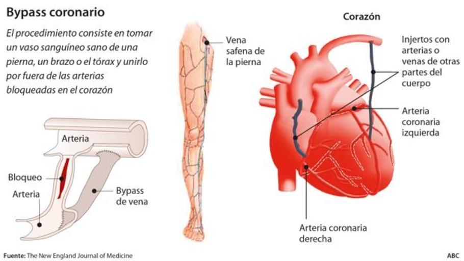 ¿En qué consiste la cirugía de bypass coronario?