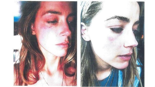 Imágenes con las que la actriz Amber Heard demostró los malos tratos por parte de su marido, Johnny Depp