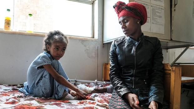 La ONU pide acceder a la región etíope de Tigray para comprobar si se han cometido crímenes de guerra