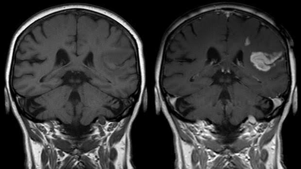 Trombosis cerebral por cirugía de próstata.