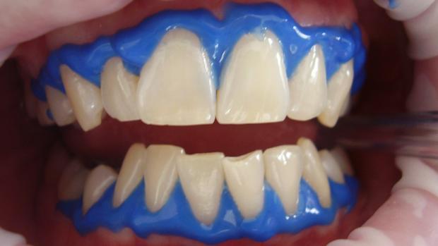 Aparato para blanquear los dientes