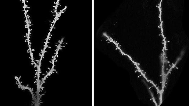 El número de sinapsis es mayor en niños con autismo (izquierda) que en menores sin el trastorno