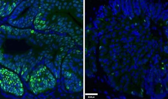 Eliminacion de células de cáncer de próstata (en verde) con el tratamiento con deguelina (derecha)