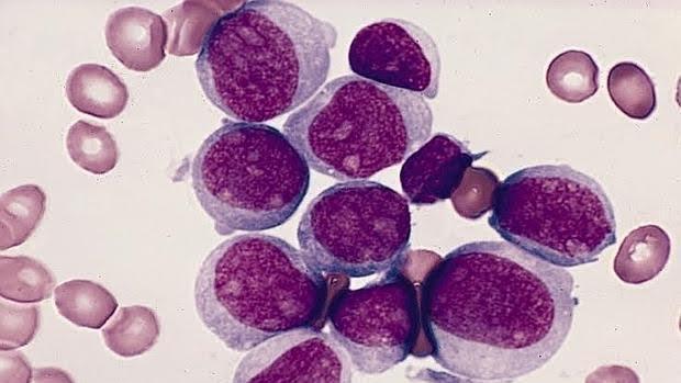 Leucemia buena