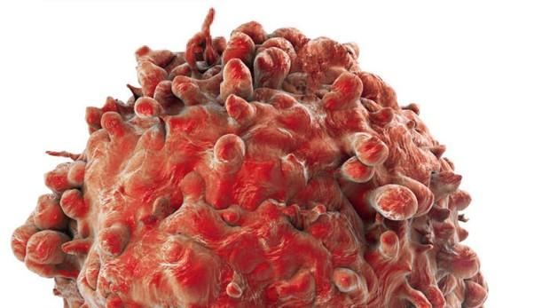 Célula tumoral