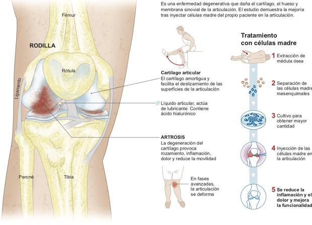 En escaleras al solo la subir dolor rodilla