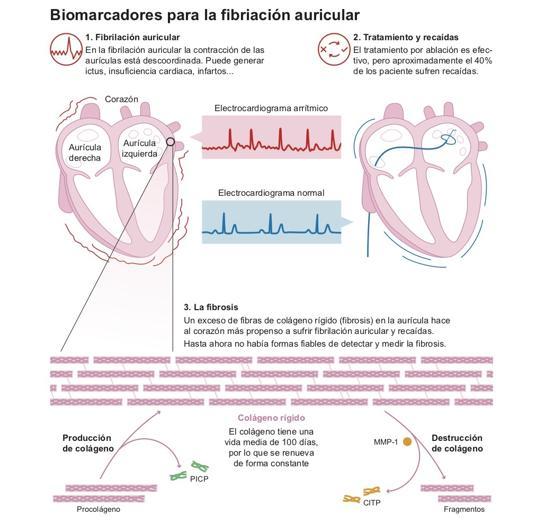 Biomarcadores para la fibriación auricular