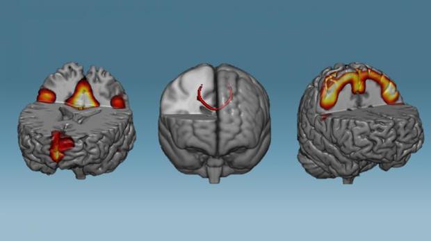 Las redes neuronales que mostraron una mayor conectividad después de una hora de entrenamiento neurofeedback: redes en modo predeterminado (izquierda), cuerpo calloso (medio) y redes sensoriomotoras (derecha).