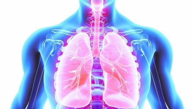 El estudio ha identificado un nuevo subtipo agresivo de carcinoides pulmonares