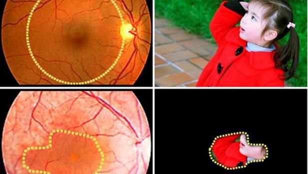 Uno de los síntomas de la retinosis pigmentaria es la visión en túnel
