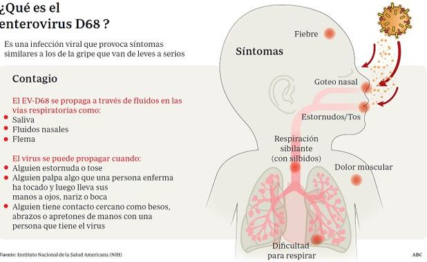 La gripe viral es contagiosa