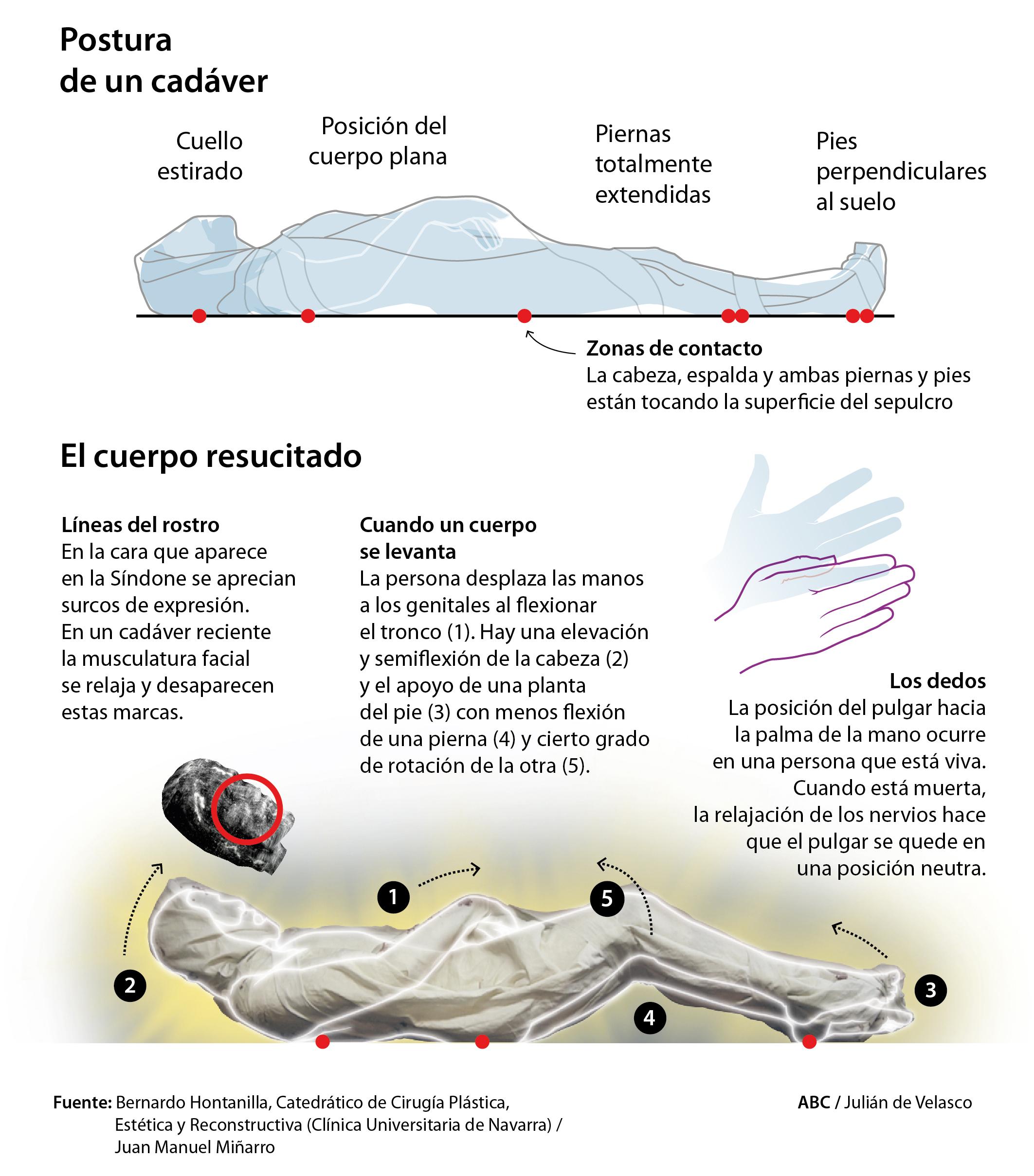 Un médico español sostiene que la imagen impresa en la Sábana ...